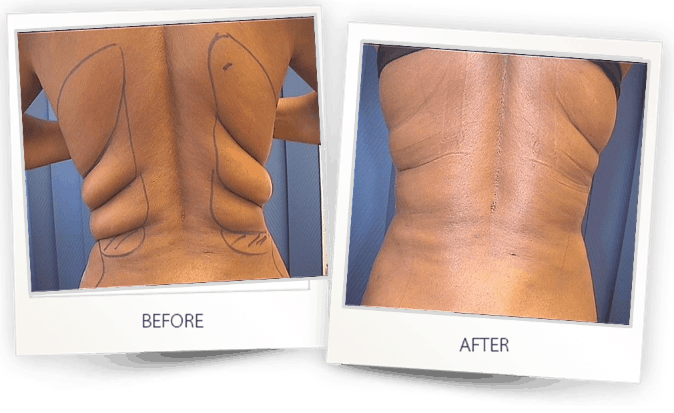 b a Liposuction back