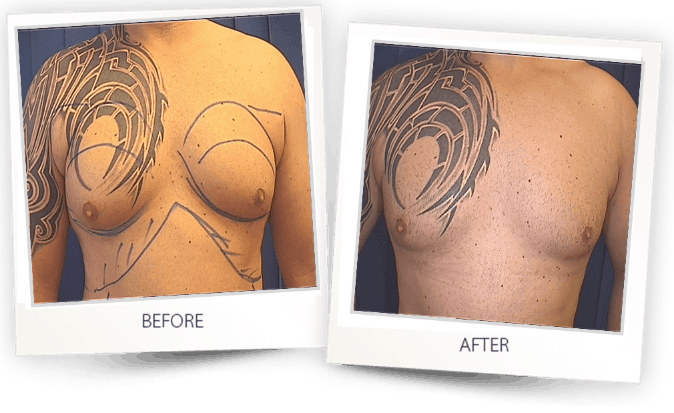 breast liposuction b a